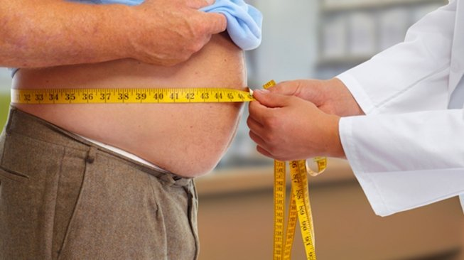 Gejala Obesitas, Badan Kurus Tapi Perut Buncit Jangan Dianggap Remeh!